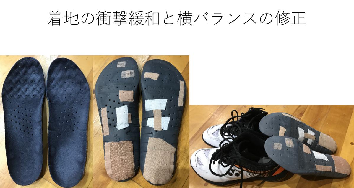 北田望 インソール 事例7